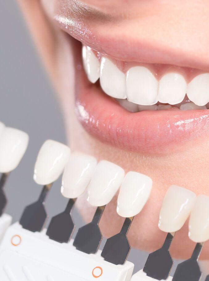 Blanchiment dentaire : comment ça se passe ?