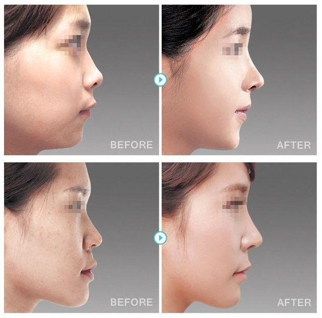 Get attractive looking nose. Nose surgery is now more safer and affordable then ever at The Line Clinic Plastic Surgery