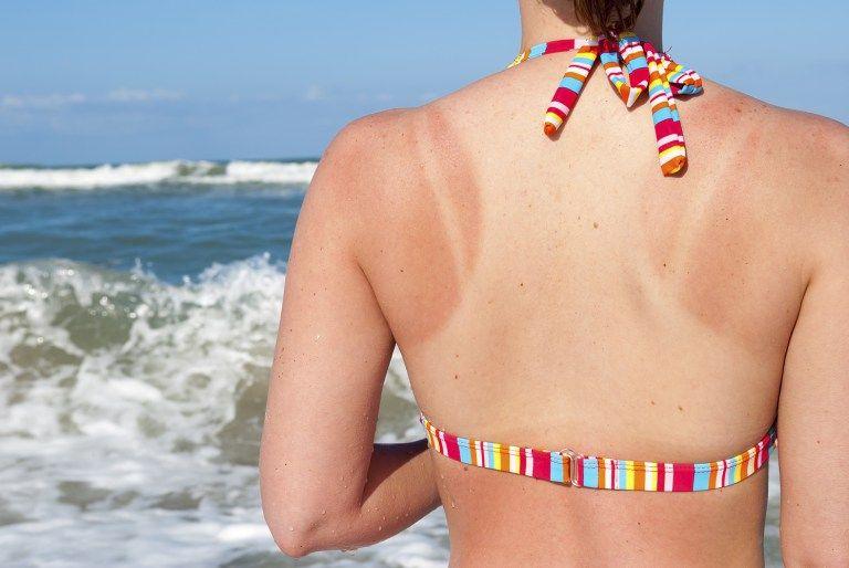 7 formas de aliviar la piel ardida