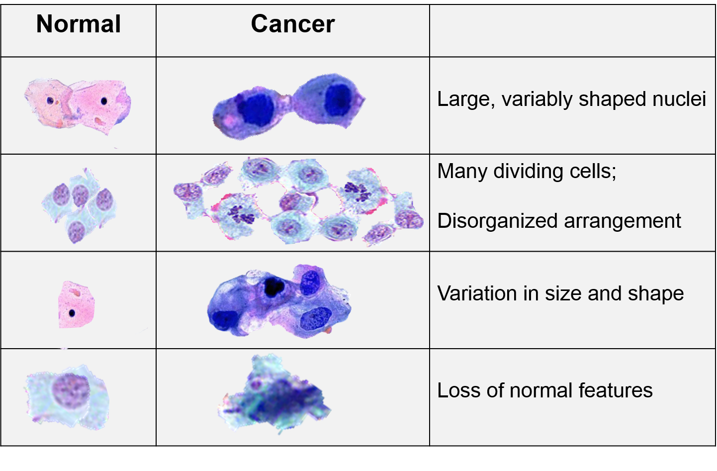 Image Result For Colours Of Cancer Cells Under Electron