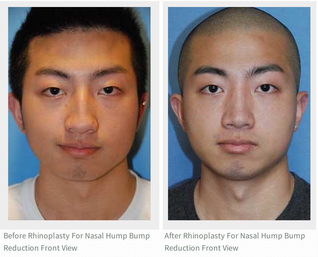 Asian Plastic Surgery