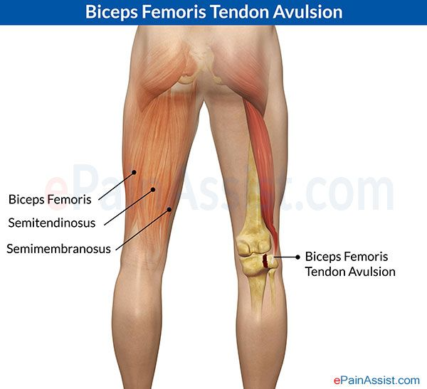 the anterior cruciate ligament tear its diagnosis treatment and prevention Mobility and strengthening exercises which are used as part of an acl rehabilitation  following an anterior cruciate ligament injury it is  of its comfortable.
