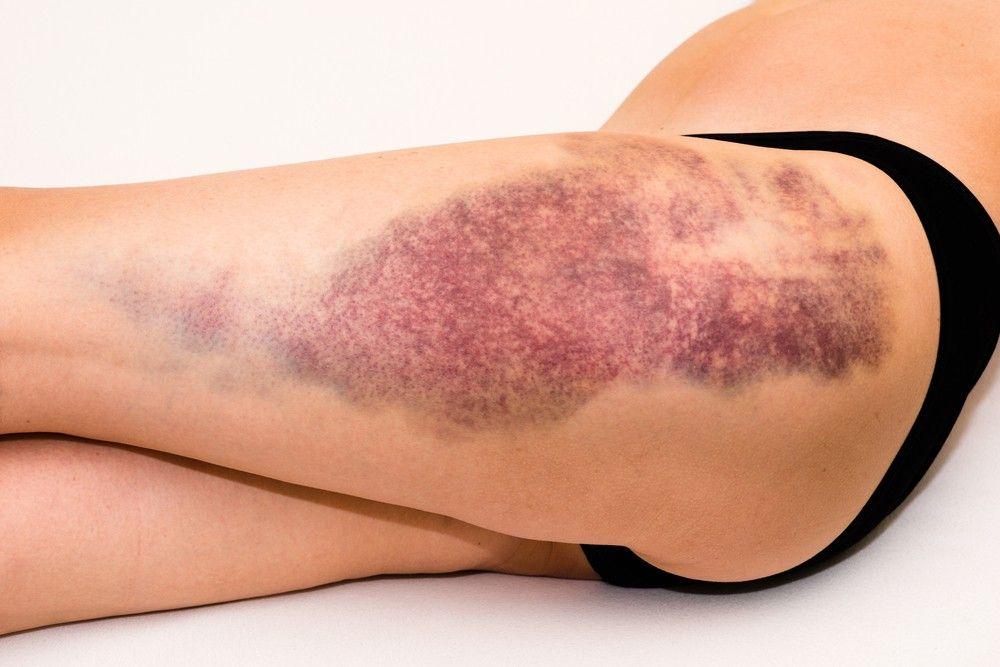 moretones en las piernas remedios caseros