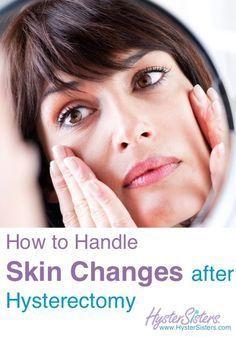 Post menopausal skin changes