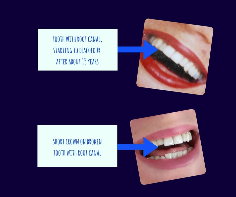 Removing Root Canals Meliors Simms The Holistic Tooth