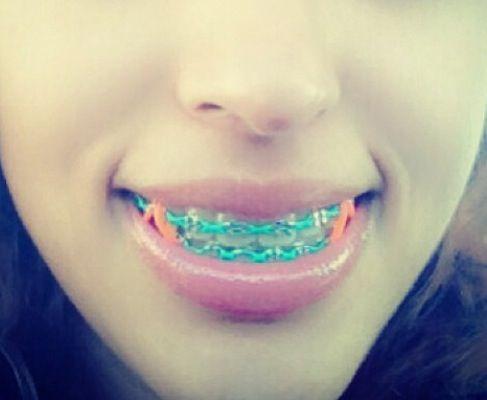 Love this color!   Cute braces, Teeth braces, Braces tips