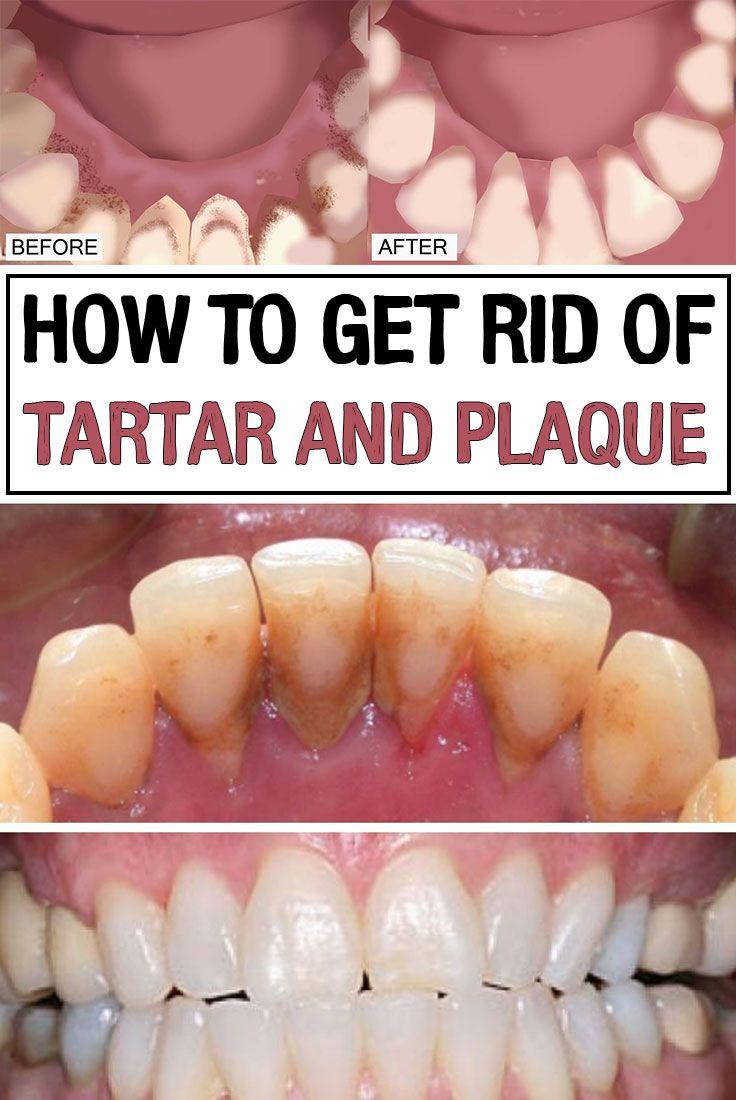 Remove Tartar From Teeth Home Remedy 3 Step Formula