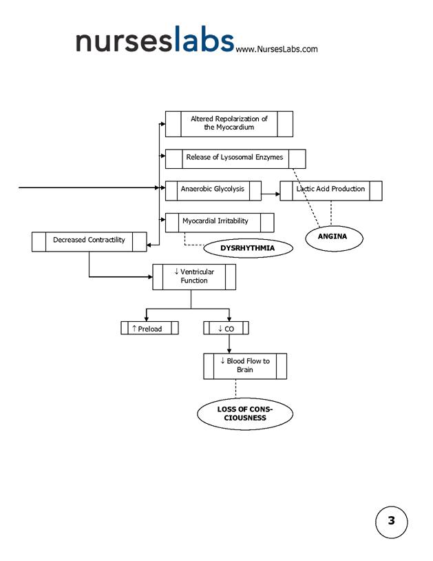 Myocardial Infarction Pathophysiology Schematic Diagram By