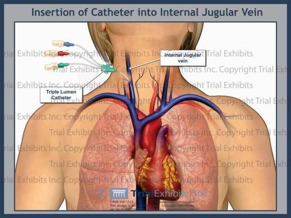 Internal Jugular Google Search Anatomy And Catheters Pinterest