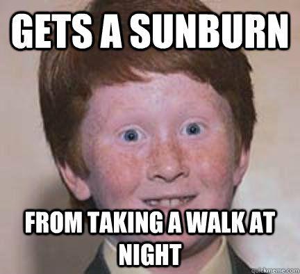 Sunburn On Really Fair Skin Ginger Sunburn Ginger Jokes Laugh