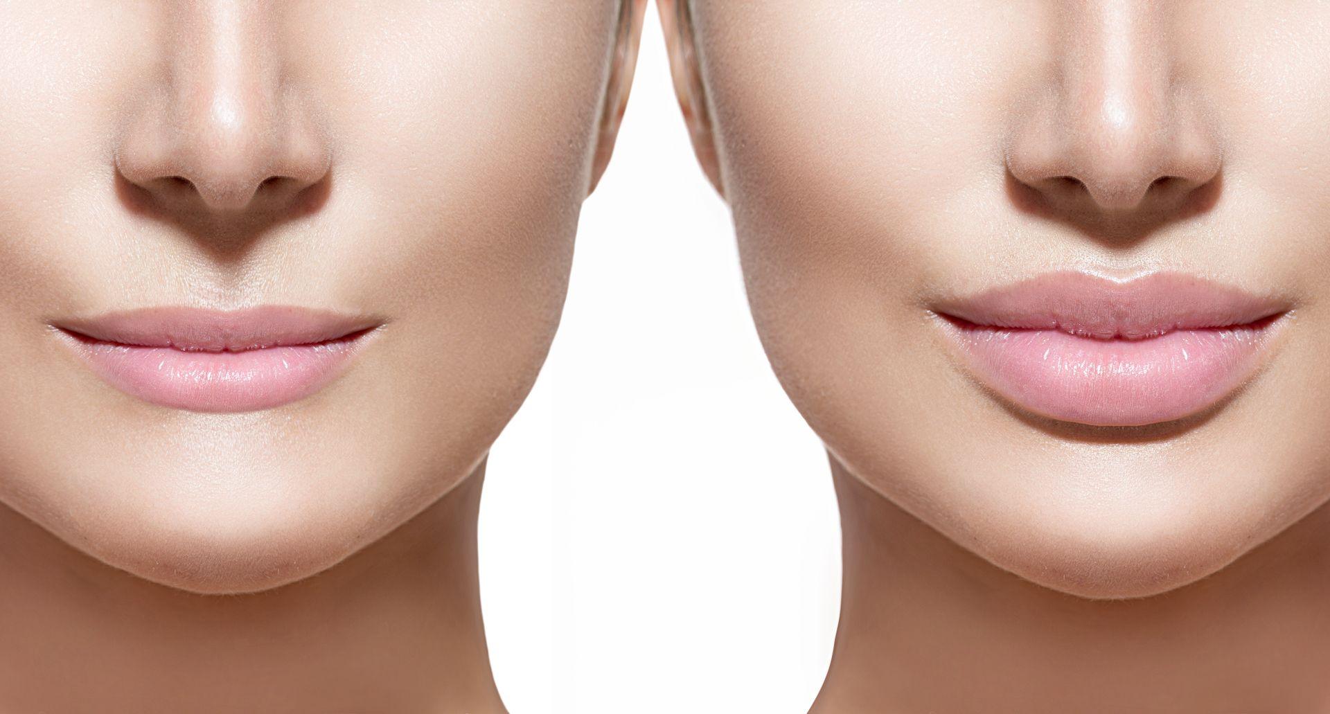 Juvederm Lips Facial Fillers Lips Fuller Lip Augmentation