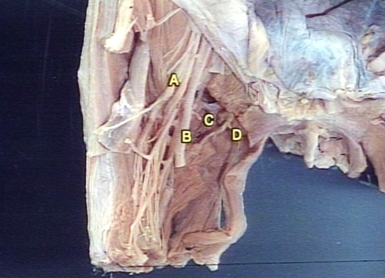 gross: thigh: obturator and femoral region; a=femoral nerve; b, Muscles