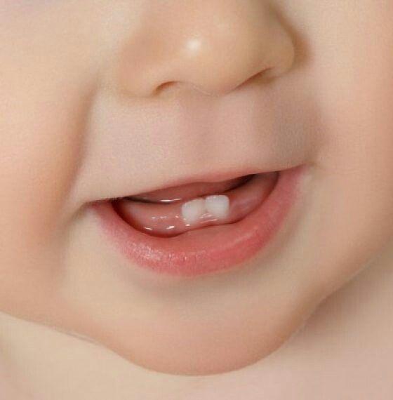 10 Tips Bij Doorkomende Tanden En Kiezen Tanden En Kiezen Op