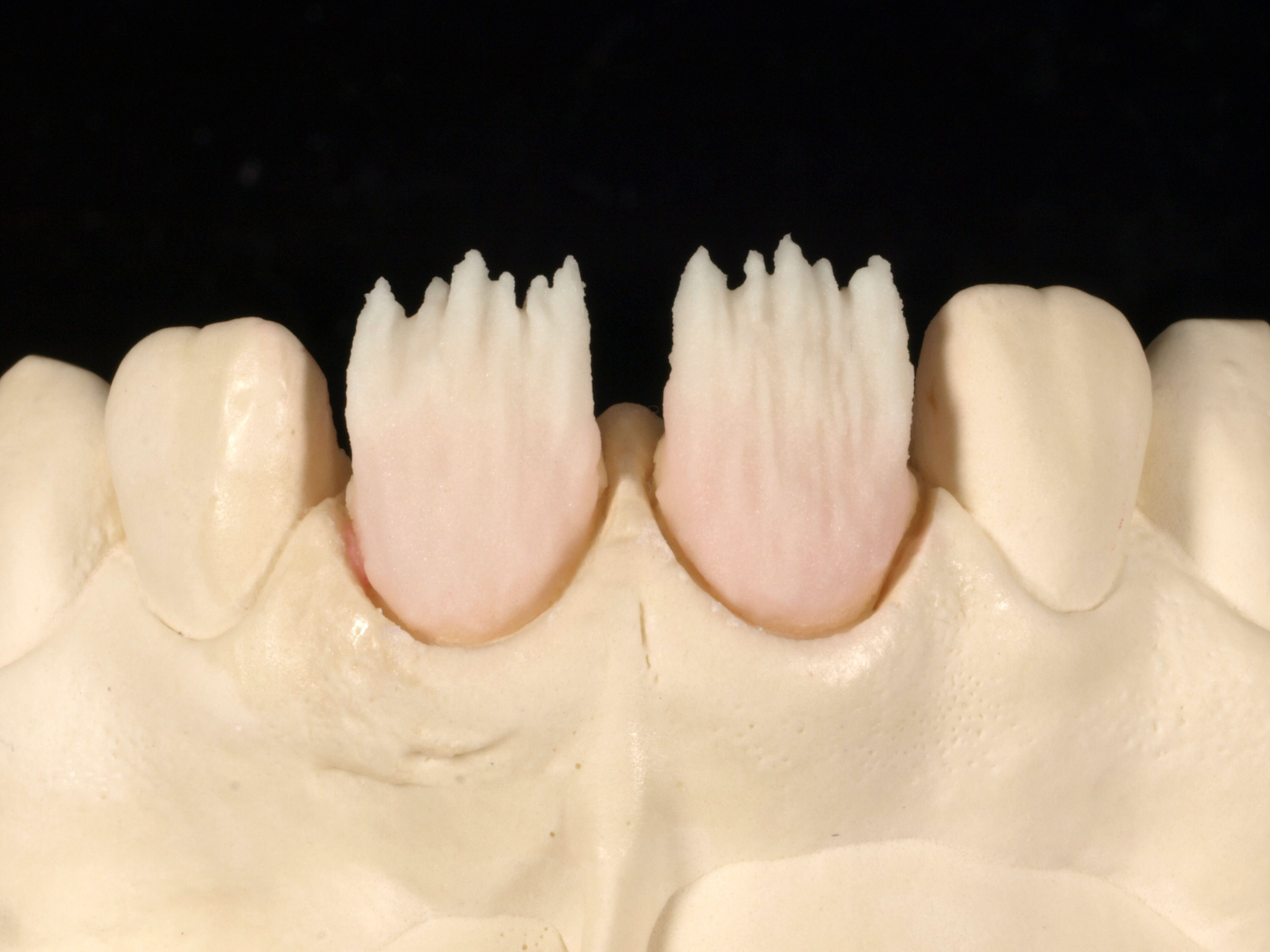 6 Applying Opacious Body Oba1 For Mamelon Structure Apply Body A2b To Form A High Chromatized Effect In The Cer Dental Art Dental Ceramics Dental Anatomy
