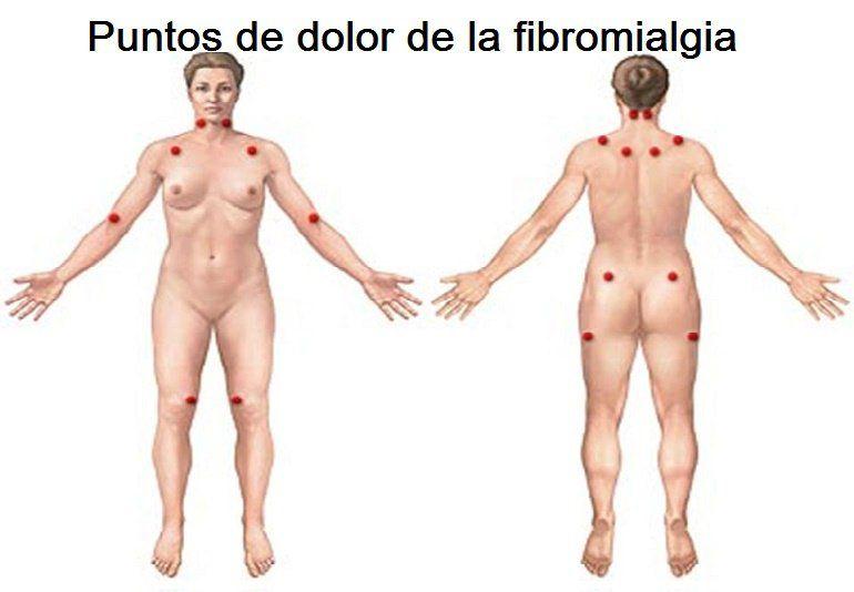Qué es la fibromialgia y cómo tratarla