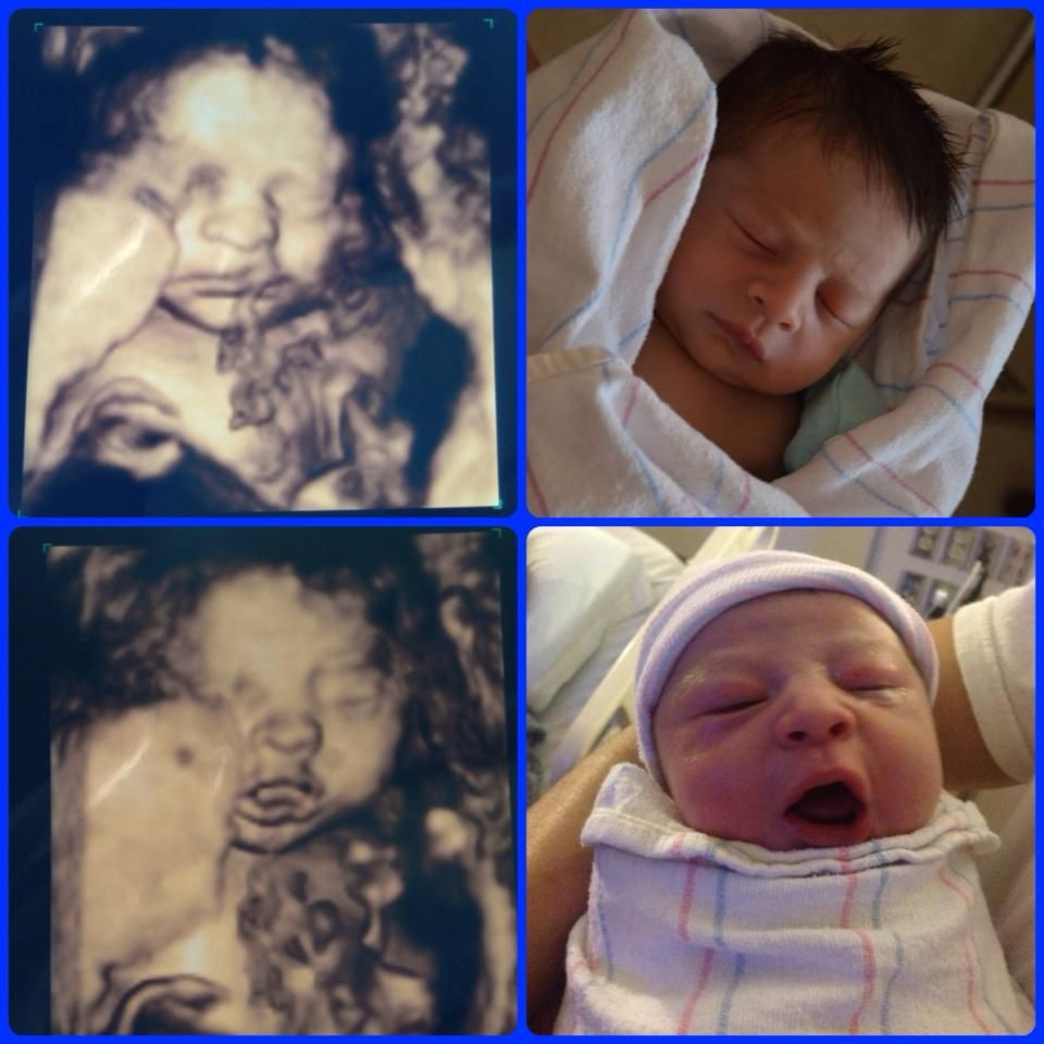 Baby Lucas Yawning And Sleeping 27 Weeks Inside The Womb