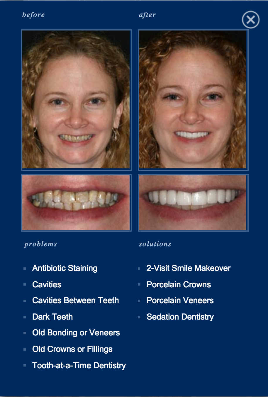 Multiple #SedationDentistry Options are Available to You
