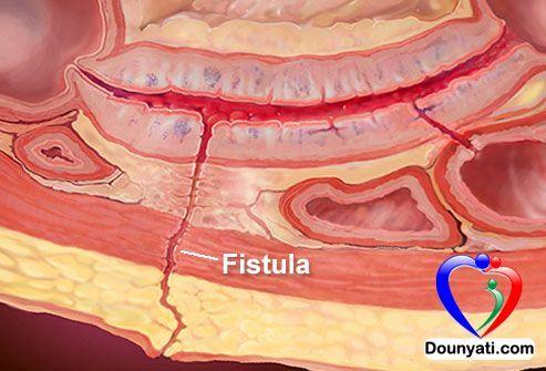 دنيتي الناسور انواعه و علاجه Crohns Disease Awareness Crohns Disease Crohns