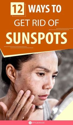 12 simple ways to get rid of sunspots in 2020  anti aging