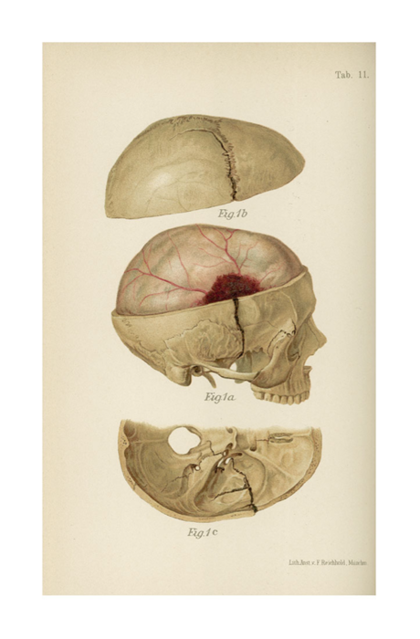 I Like The Overhead View Of The Foramen Magnum Oil Painting