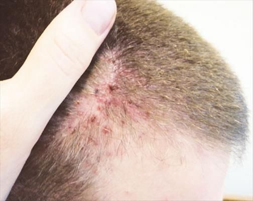 Psoriasis cuir chevelu rem des de grand m re efficaces psoriasis du cuir chevelu soigner le - Remede de grand mere pour assouplir le cuir ...