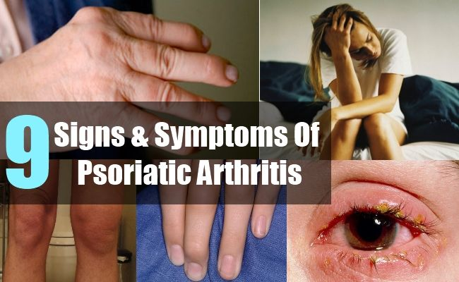 relationship between psoriasis and rheumatoid arthritis