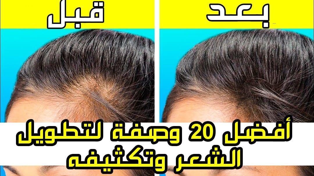أفضل 20 خلطة لتطويل الشعر في اسبوع مجربة و فعالة Hair Beauty Hair Beauty