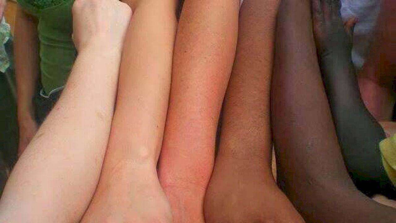 تغير لون الجلد Color Change Color Skin Color