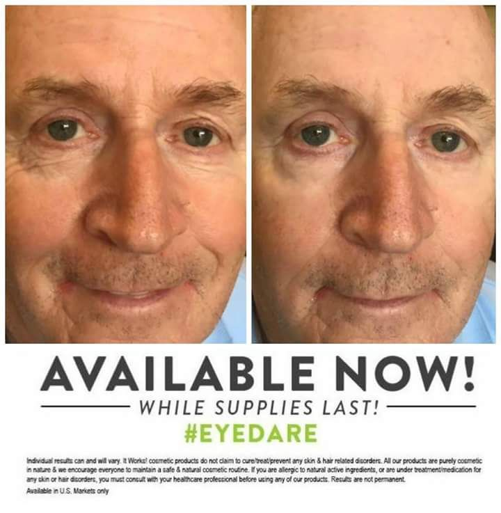 Another great men's #Wow testimony. :) #skincare #results