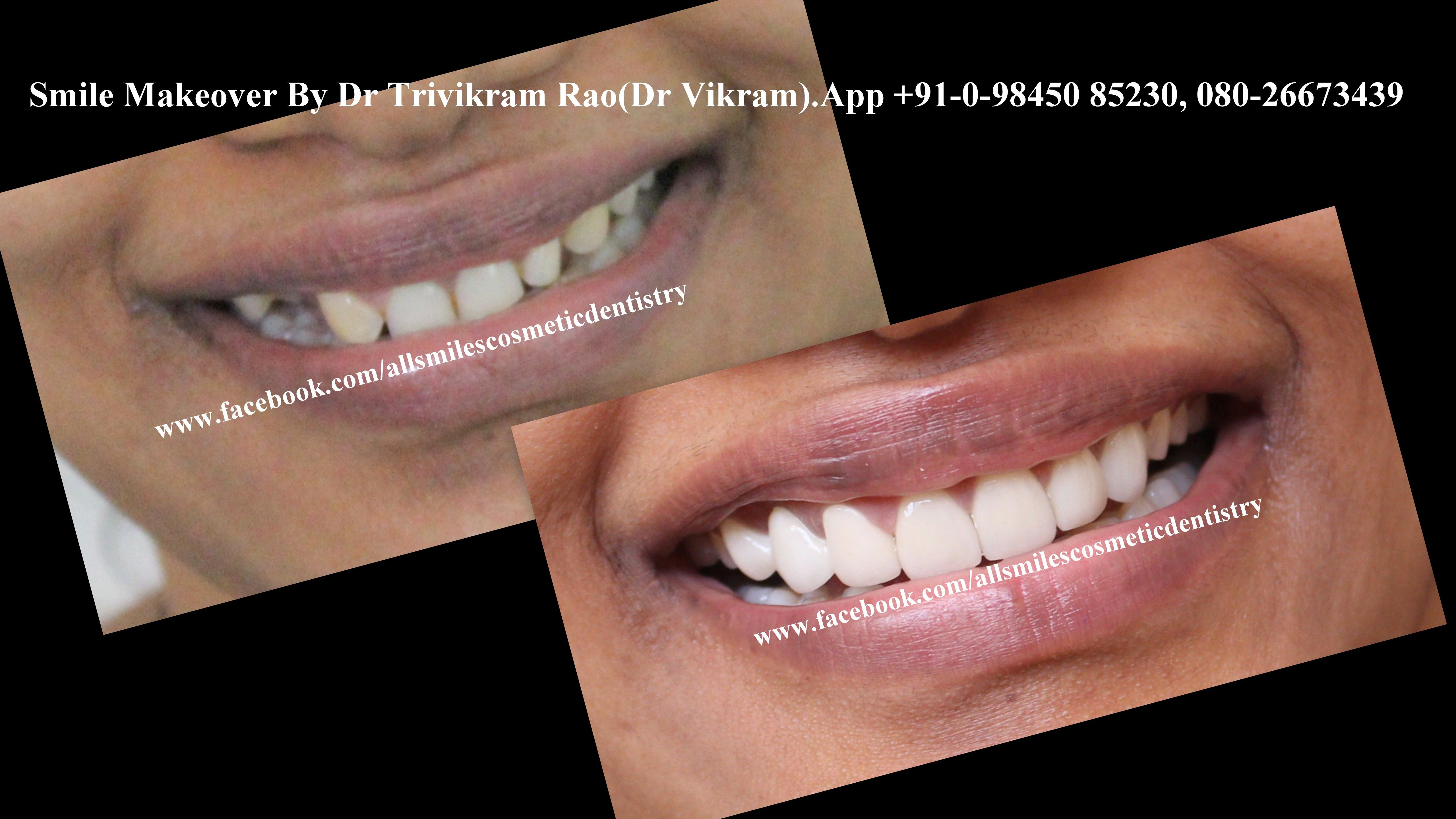 Smile makeovers in Bangalore by Cosmetic Dentist Dr Trivikram(Dr Vikram). Read more at http://www.allsmilesdc.org/cosmetic-dentistry PH +91-0- 98450 85230.080-26673439