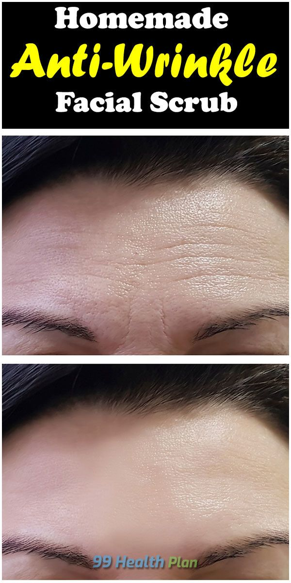 10 skin care Homemade wrinkle creams ideas