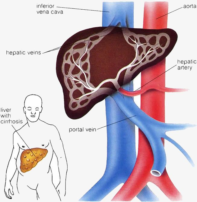Portal Hypertension Refers To Abnormally High Pressure In The