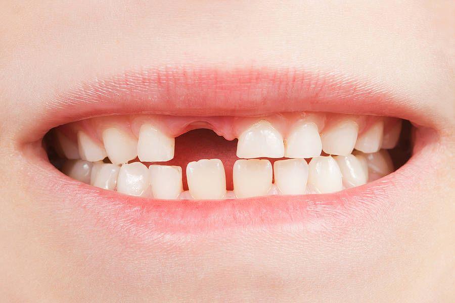 Gwagligi Milchzäh... wenn die ersten Zähne ausfallen