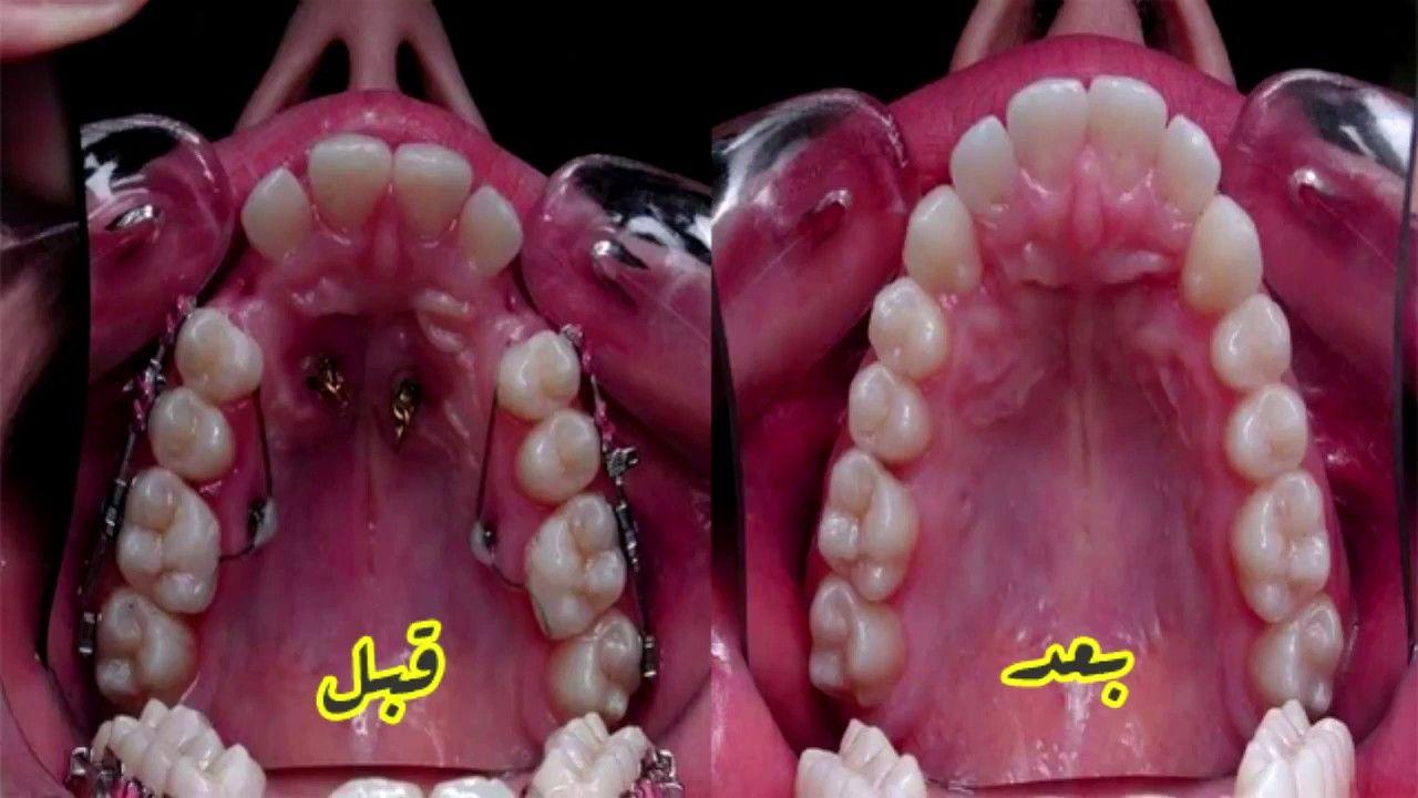 فن تقويم الاسنان وكيف تحولت شكل الاسنان فى ثلاثة اشهر لن تصدق عين Lokai Bracelet Live Lokai Bracelet Bracelets