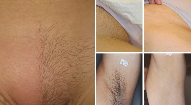 How To Naturally Remove Body Hair Permanently No Waxing Or