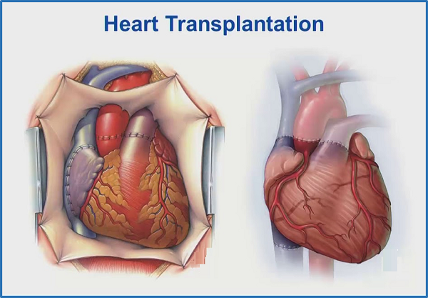 Best Heart Transplant Centers In India Offer High Success Rate Solutions Heart Transplant Heart Surgeon Transplant