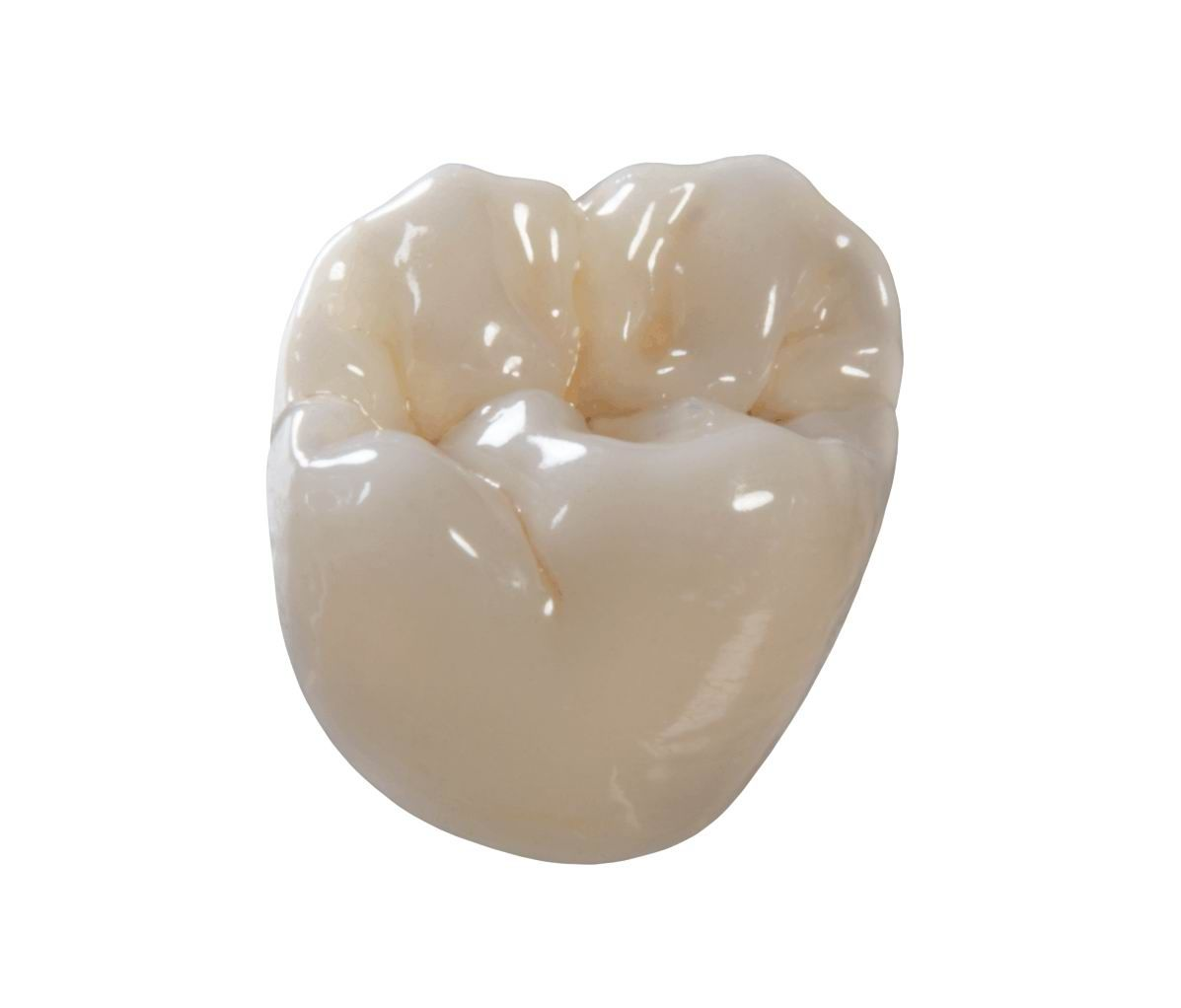 What Is The Difference Between Inlay Onlay Overlay And Pinlay News Dental Dental Crowns Dental Ceramics