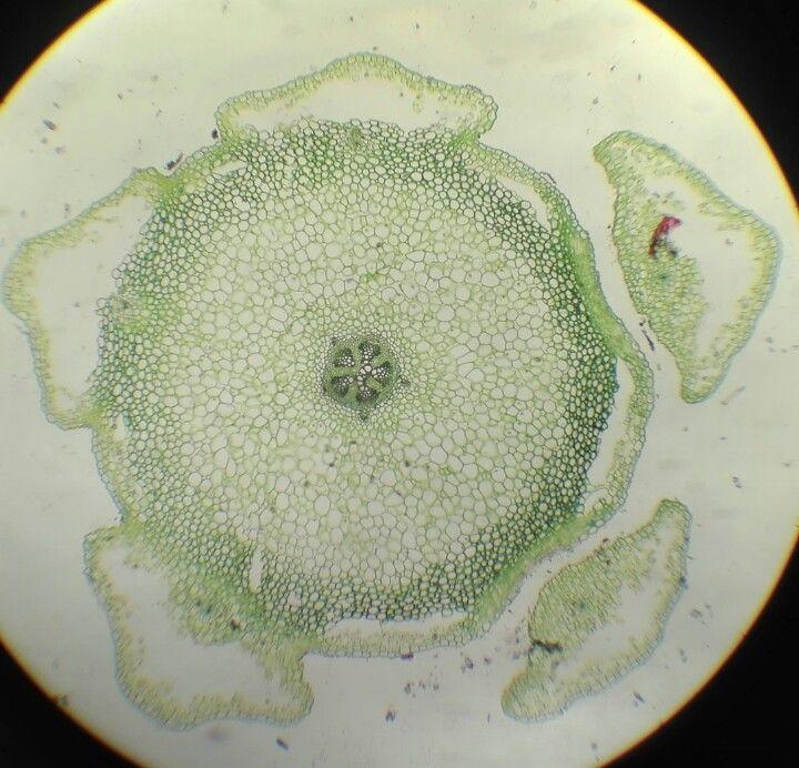 Lycopodium protostella through transversal cut of the stalk