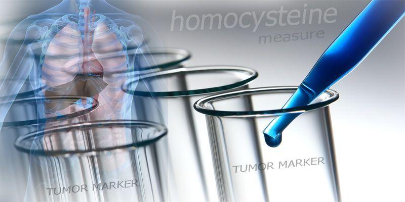 Pitanja I Odgovori Za Tumor Marker di 2021