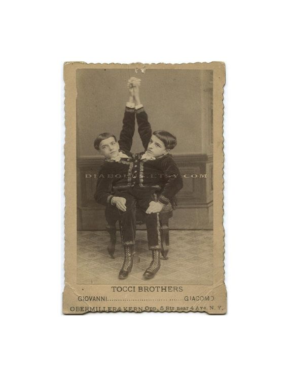 1890 Photo of Conjoined / Siamese Twins / Circus and Sideshow Freaks ...