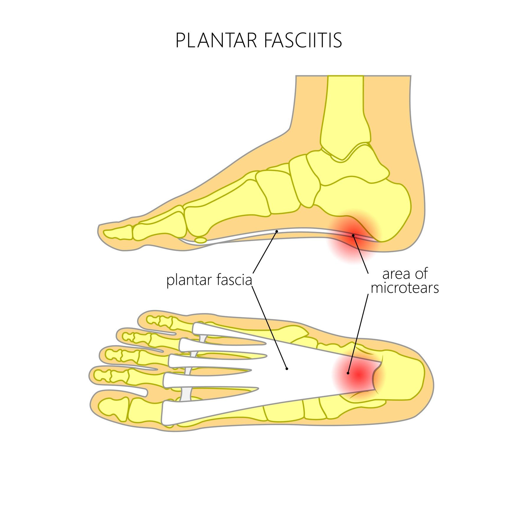definition of plantar fasciitis by who | plantar fasciitis stretches