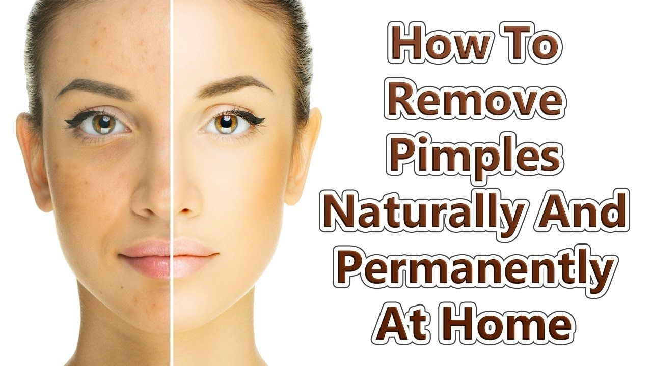 How To Get Rid Of Pimples Instantly How To Remove Get Rid Of Pimples Overnight Naturally From Face And Get How To Remove Pimples Acne Treatment How To Get Rid Of Pimples