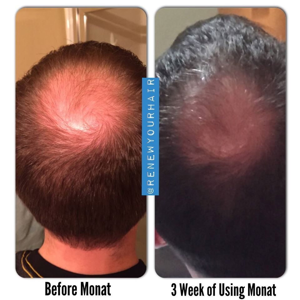 Look what monat can do for you heidicurtis hair care for men
