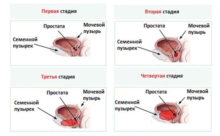 какая разница между простатитом и аденомой