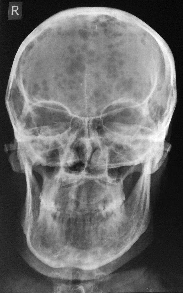 Multiple myeloma | Radiology Case | Radiopaedia.org | Medicine....is ...