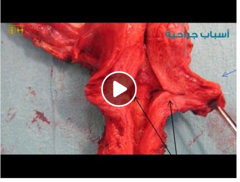 النيش وأسبابه المختلفة مع ا د كتور سيد الأخرس من داخل غرفة العمليات مستشفى الامم مصر