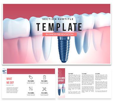 Dental Implant Cost Powerpoint Template Powerpoint