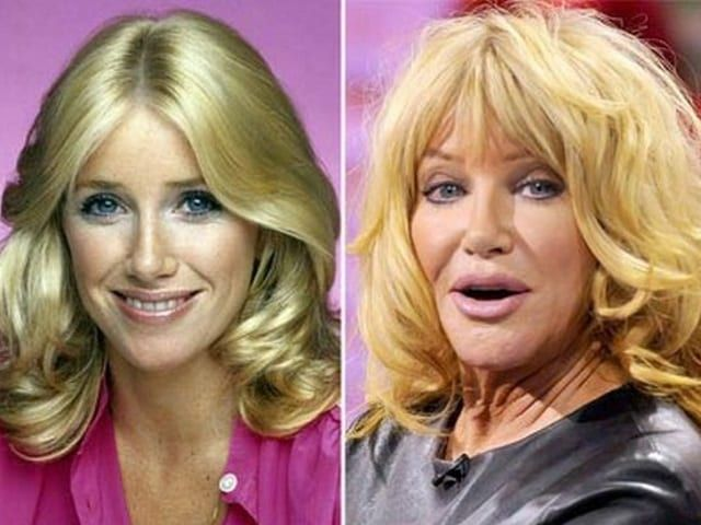 Celebrity Plastic Surgery Disasters - Before & After