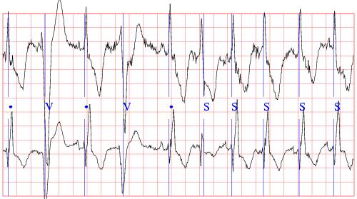 http://i0.wp.com/www.raysahelian.com/atrialfibrillation.html ...