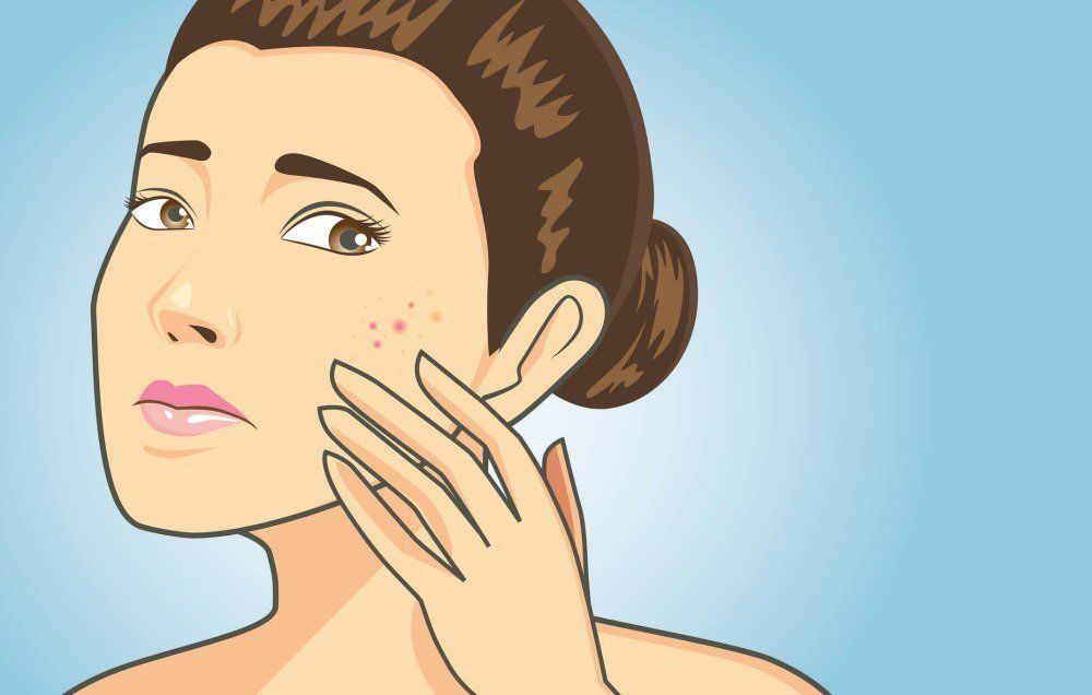 What You Should Do After Popping A Zit How to remove